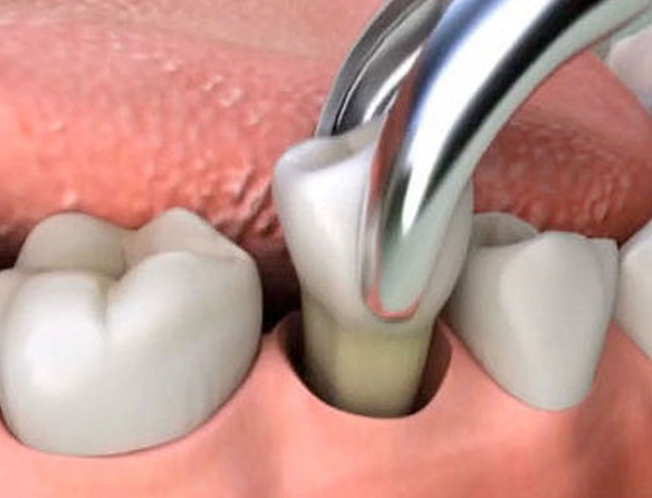 dental extraction in Rochester